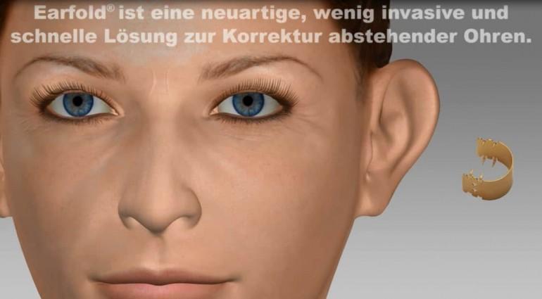 Ear Fold – Ohren anlegen mit einem Click