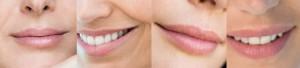 Lippenvergrößerung mit Hyaluronsäure