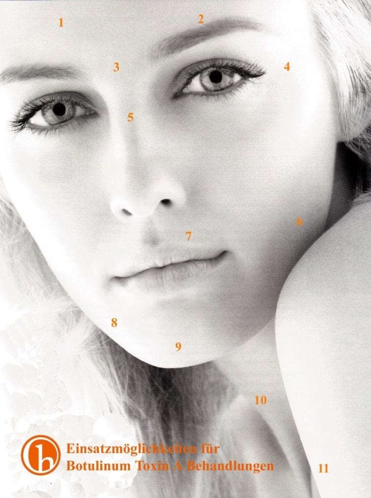 Wann hilft Botox?