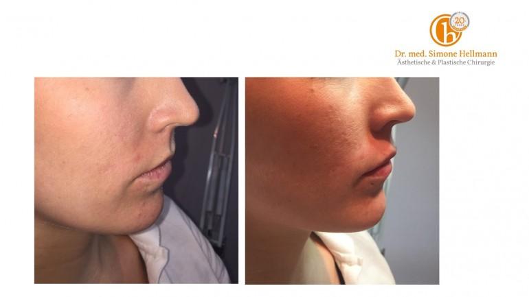 Lippenvergrößerung – Mein Erfahrungsbericht