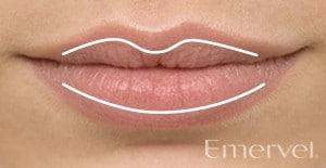Lippenausgleich