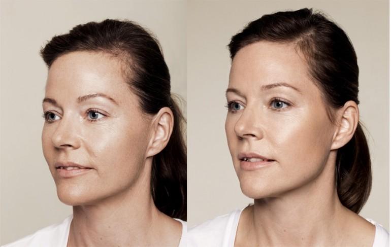 VOLITE & Skinbooster-für eine bessere Hautqualität